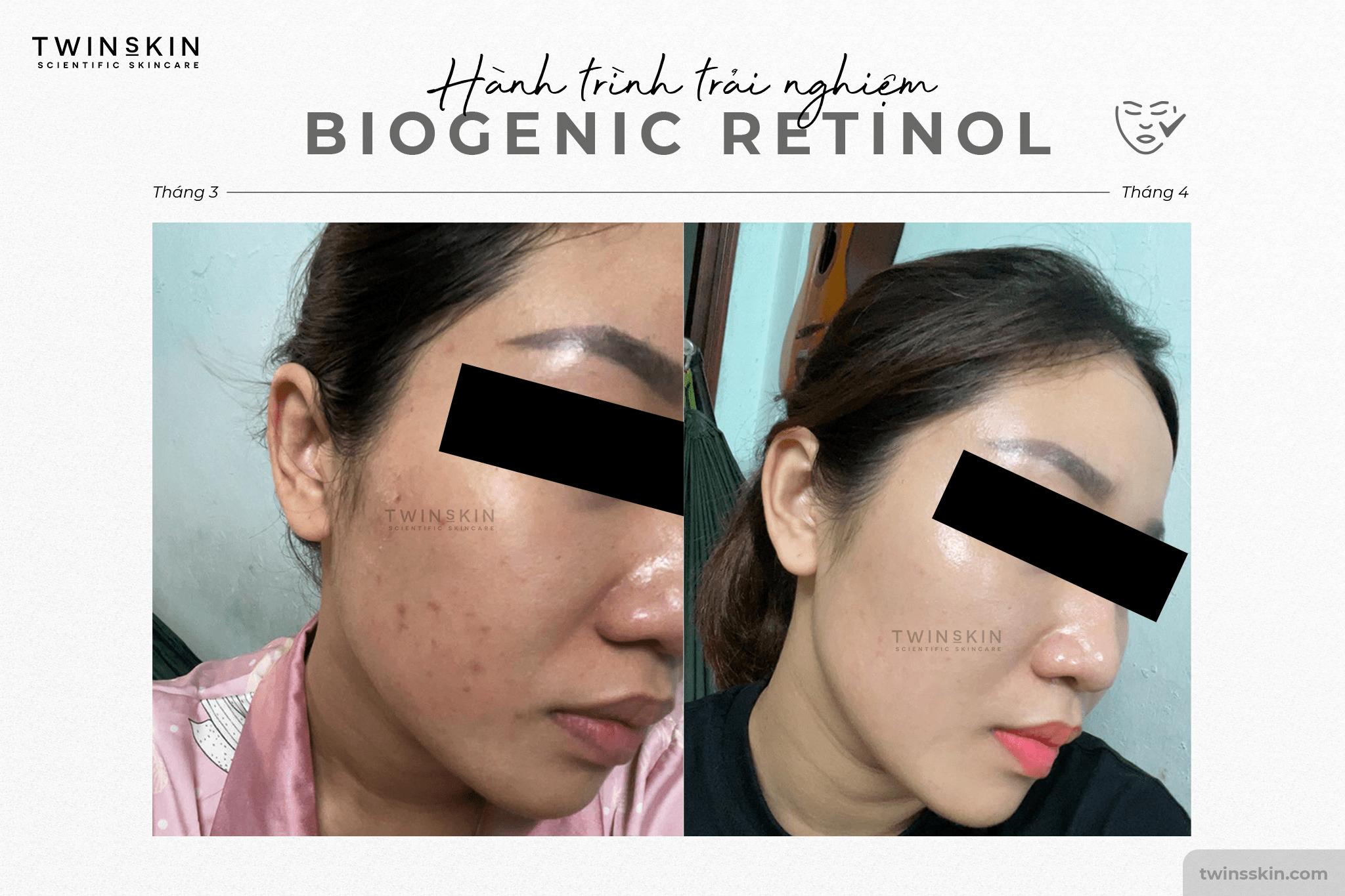 retinol twins skin review